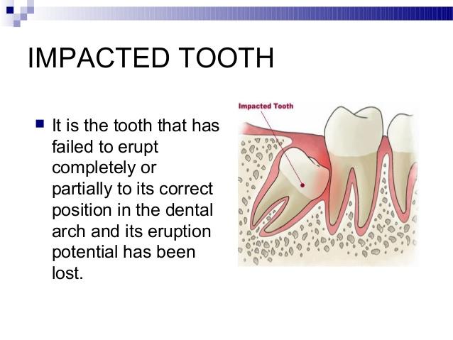 operasi-gigi-bungsu-surabaya